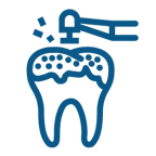 endodoncia dentista Tarragona